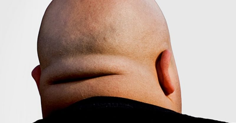 How to lose neck fat